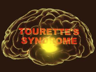 Cannabis (CBD und THC) beim Tourette-Syndrom