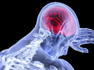 Epilepsie mit Cannabis erfolgreich behandeln