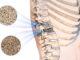 CBD bei Osteoporose für die Gesunderhaltung der Knochen